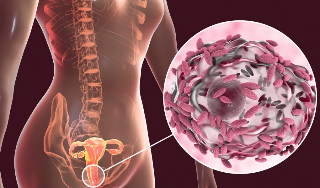 Vaginose bactérinne traitements