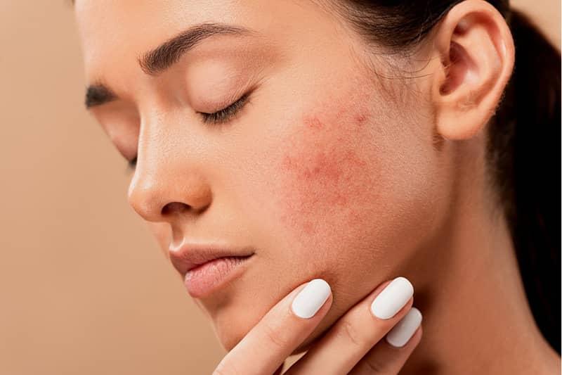 Huile de jojoba pour l'acné